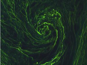Eye_of_an_algal_storm_large_Sentinel2